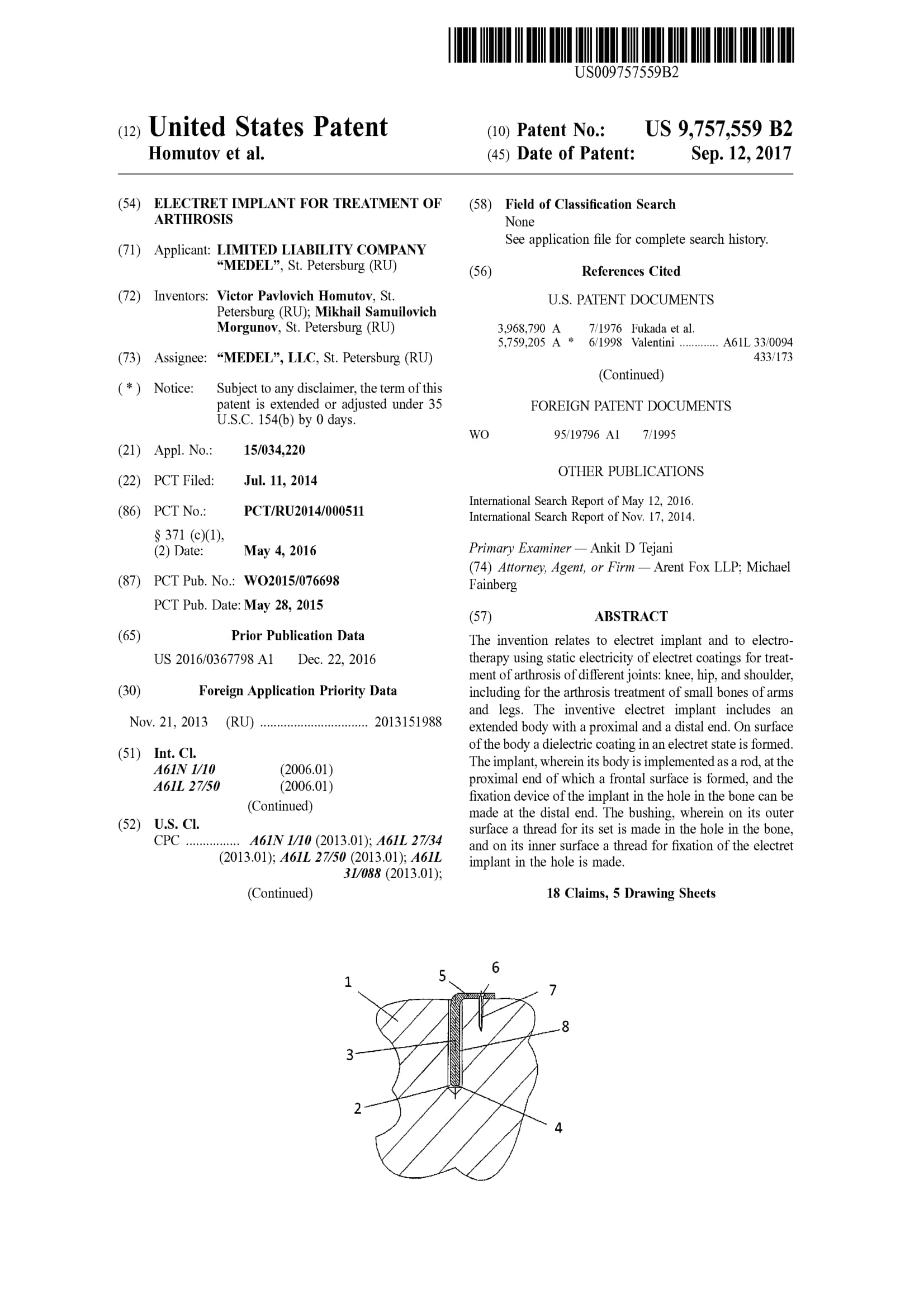 impleso-usa-patent